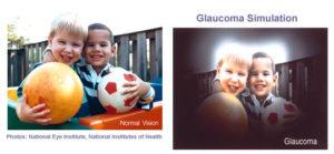 glaucoma vision