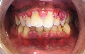 Gum disease - gingivitis - SDP Dental