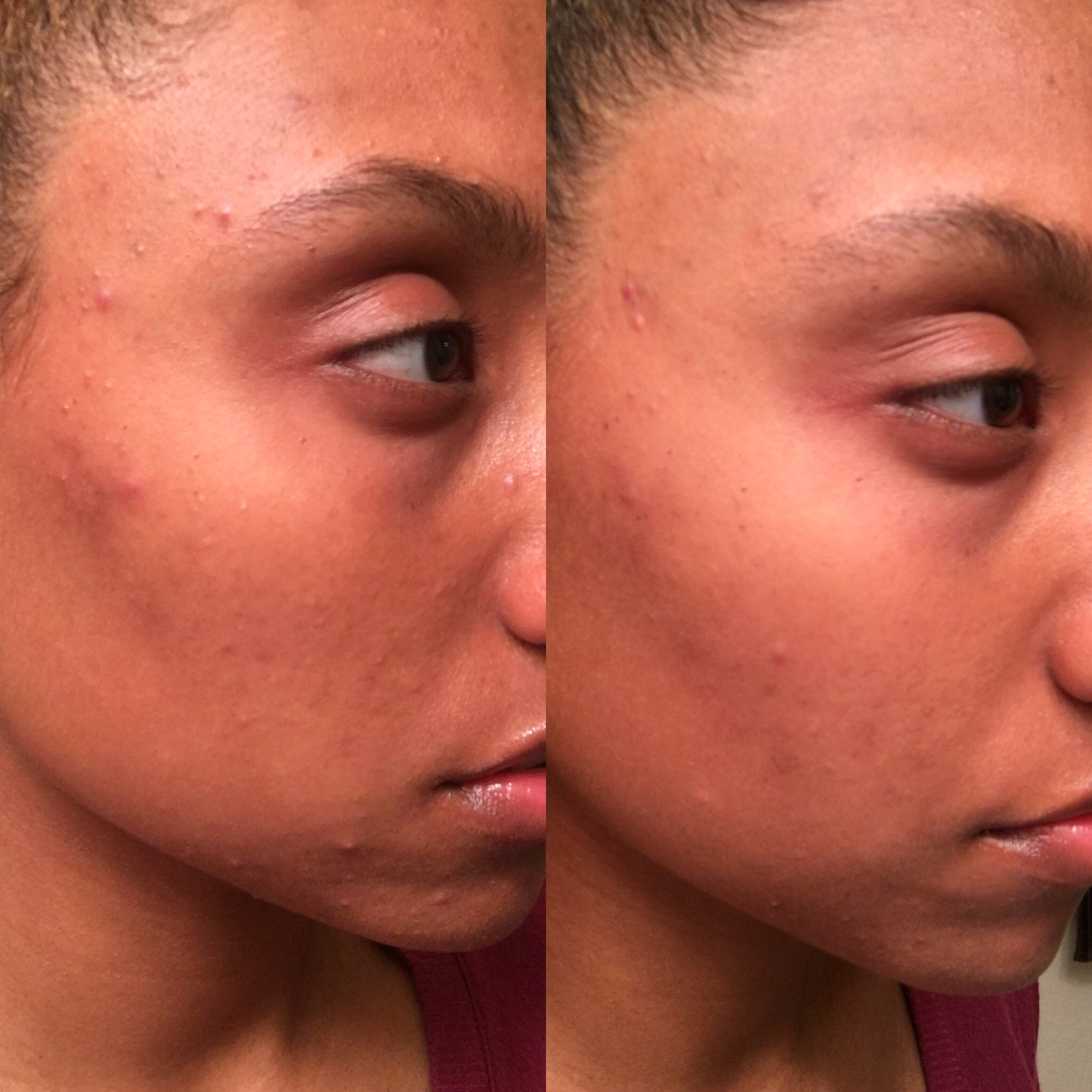before and after using Kiehl's Blue Herbal Treatment Acne Cleanser