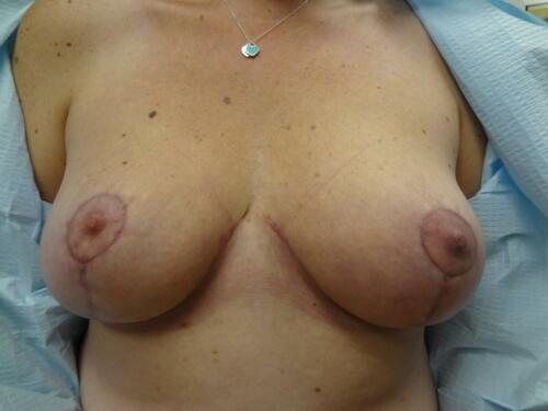 patient photos 009