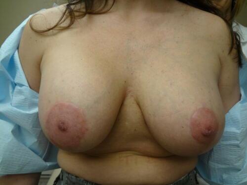 patient photos 037