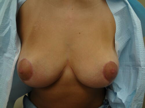 patient photos 049