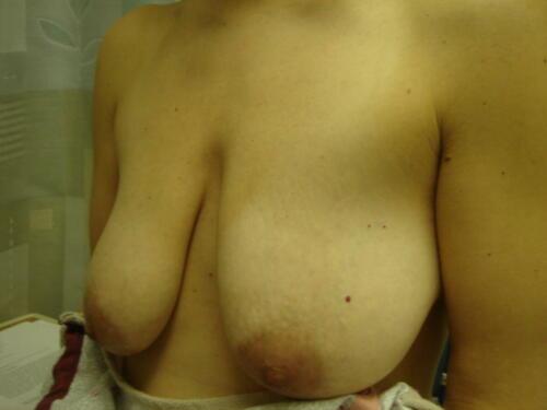 patient photos 055