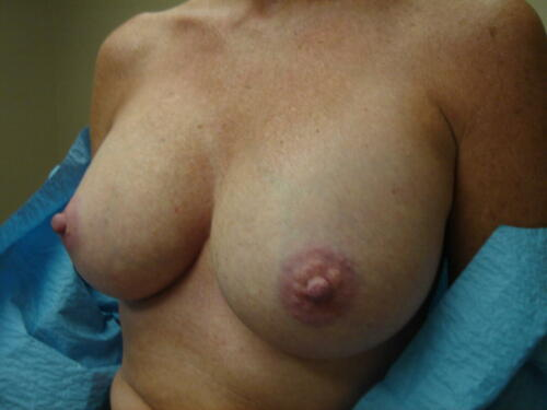 patient photos 1388