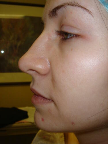 patient photos 248