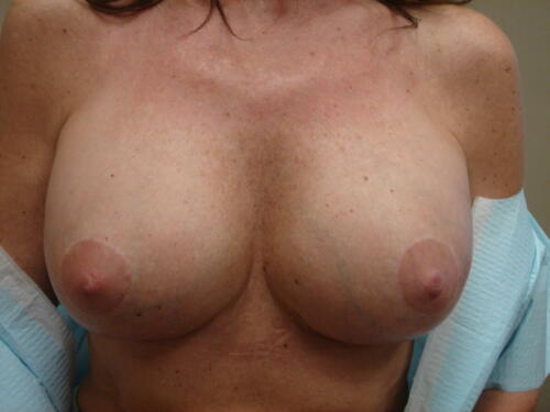 patient photos 370