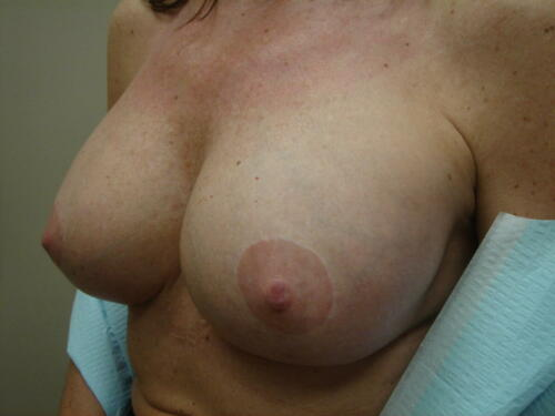 patient photos 371