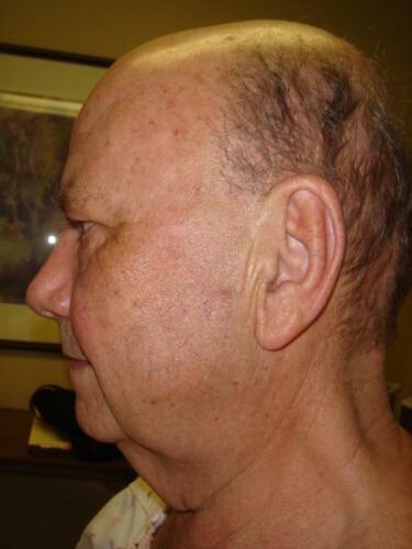 patient photos 400