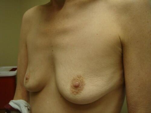 patient photos 518