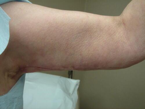 patient photos 629