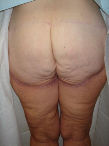 Lower Body & Thigh Lift