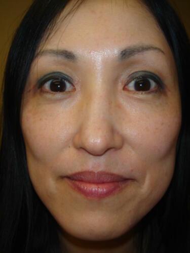 patient photos 815