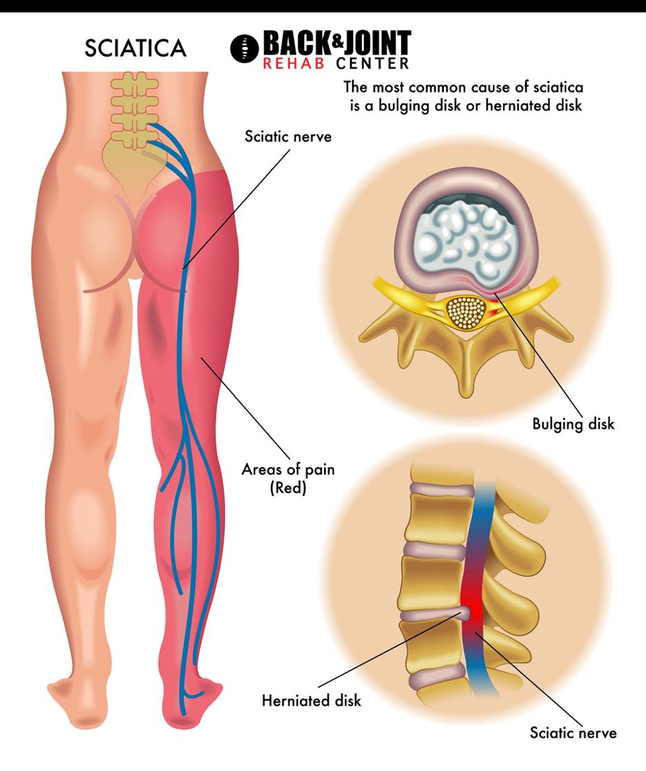 sciatica pain, sciatic nerve pain, sciatica, shooting leg pain