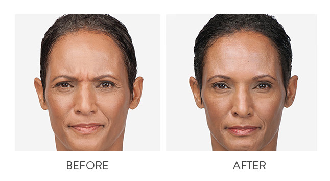 Before and after results for BOTOX