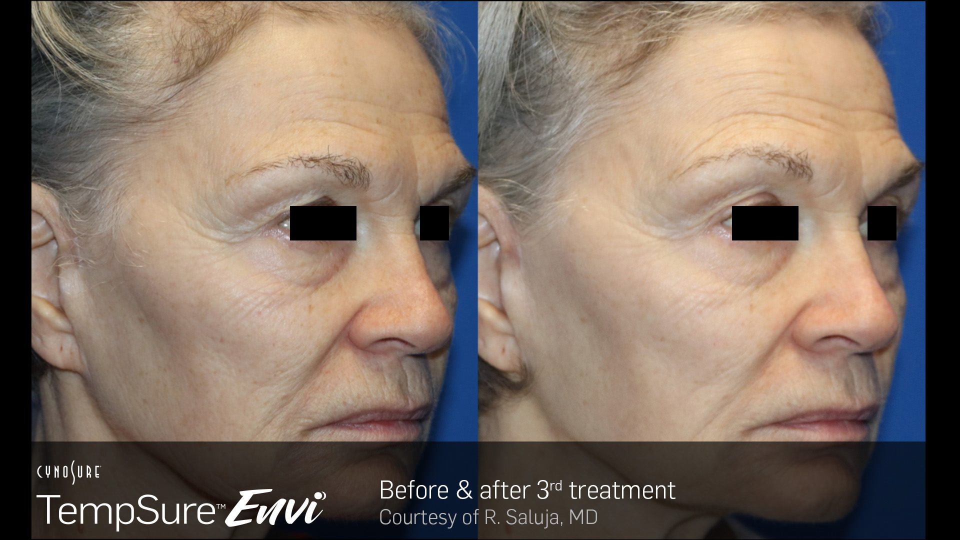 Before and after TempSure Envi results