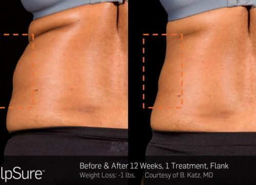 SculpSure Fat Removal Package