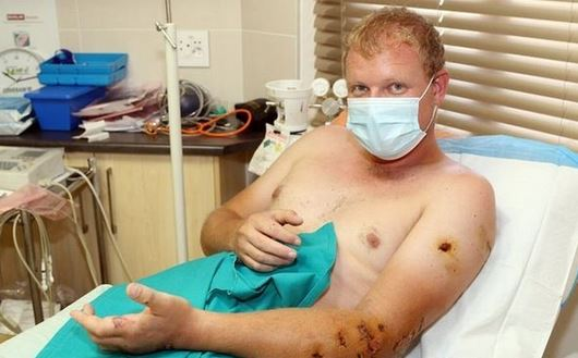 Man In Hospital After Lion Attack