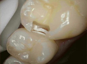 Tooth-Colored-Filling---BEFORE