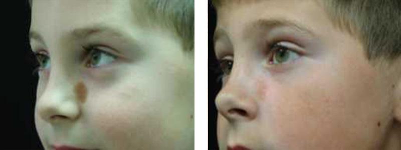 birthmark-nose-copy