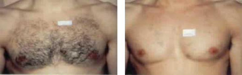 hair-chest-copy