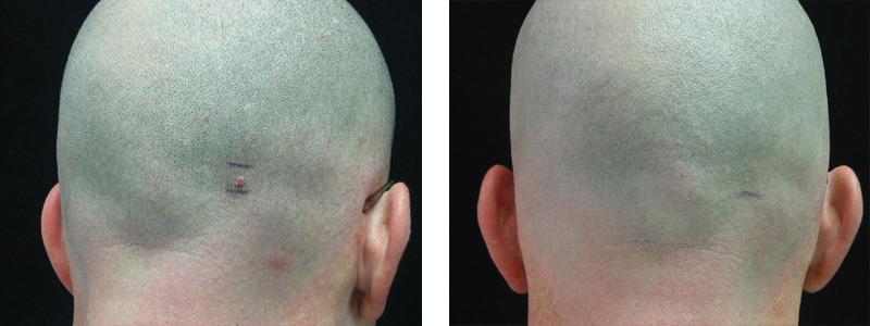 mole-scalp-copy