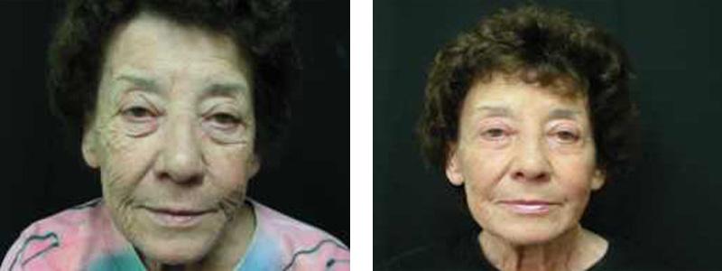 resurfacing-face-copy
