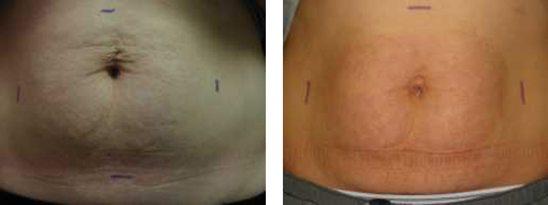 stretch-abdomen-2-copy