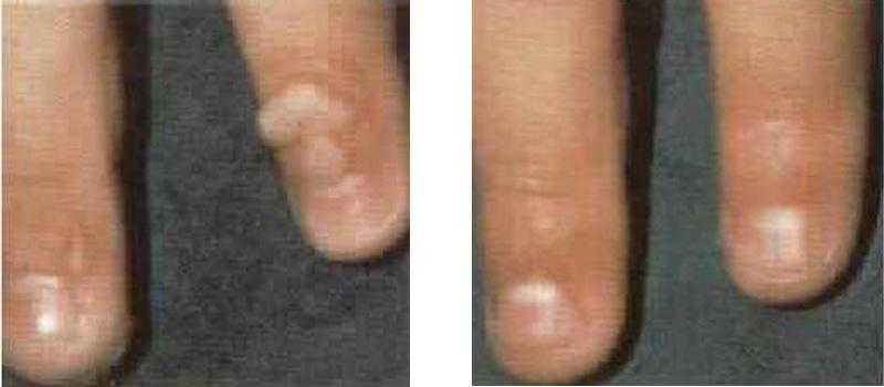 war-finger-copy