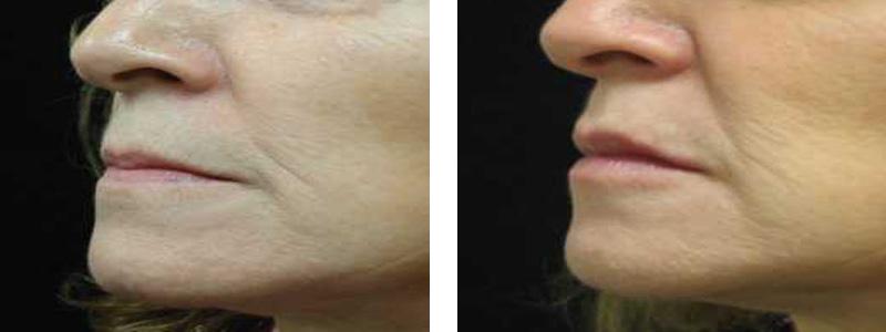 collagen-lip-l-side-copy
