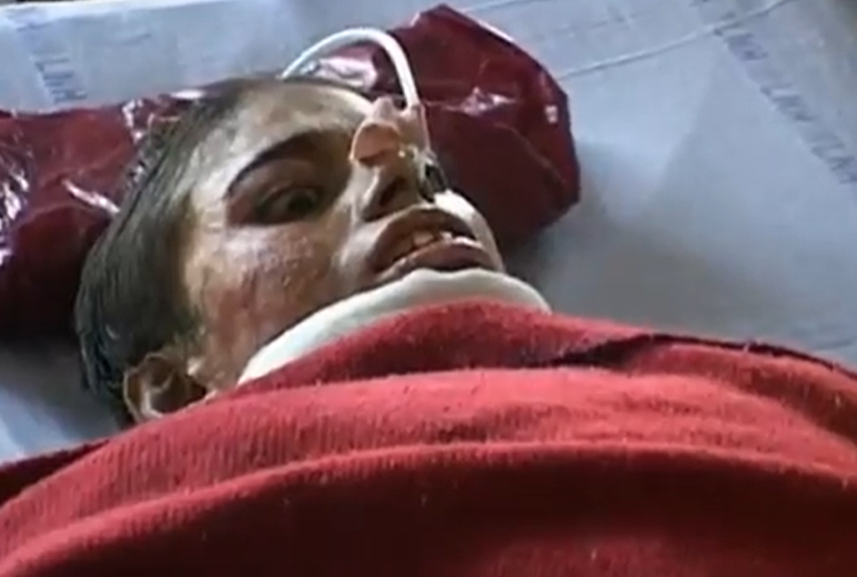 This image is from the BBC documentary episode Dowry Law. In this image, Anokhi has been in hospital for months after being burned by her in-laws. She died a week after this image was taken.