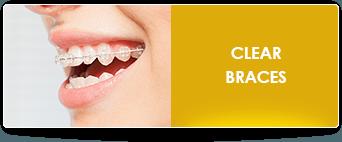 lingual braces fontana