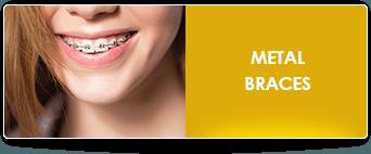 metal braces fortana