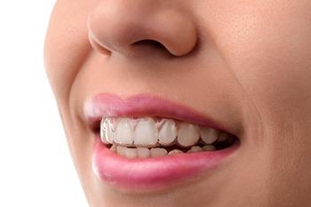 rancho cucamonga invisalign dentists
