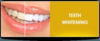 teeth whitening near ontario