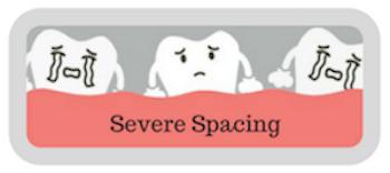 severe spacing