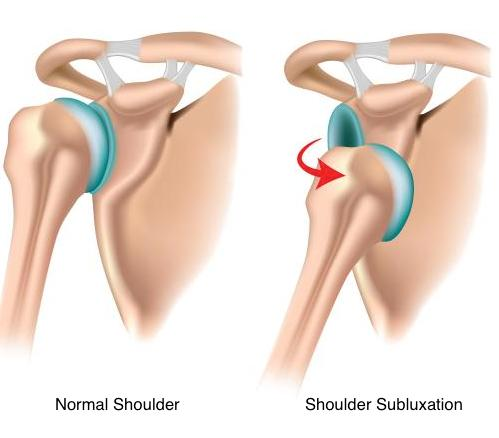 The Best Treatment for Shoulder Subluxation