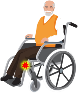 man in a wheelchair with compression on the peroneal nerve