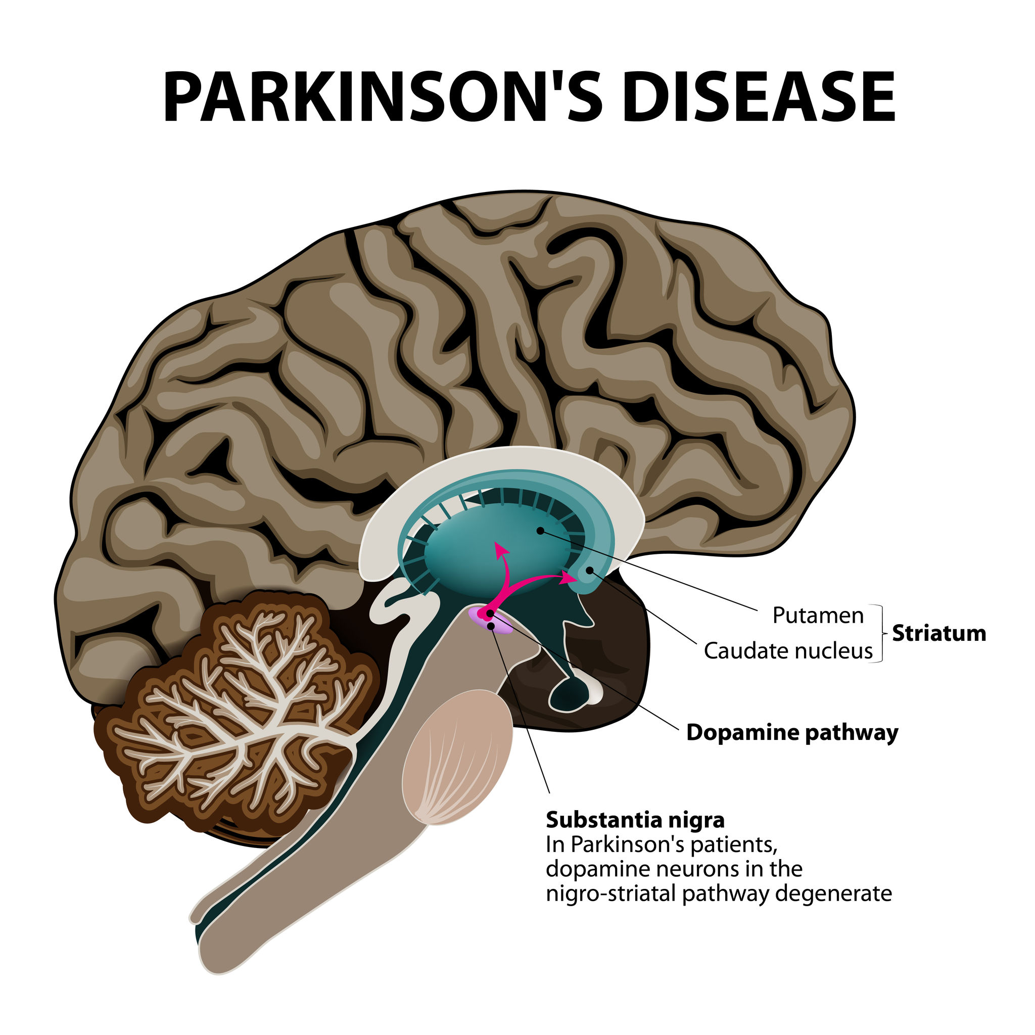 Image of a brain with parkinsons disease