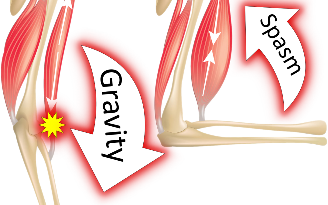 vector image of bicep spasticity