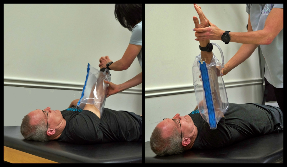therapist helping with stroke arm exercise