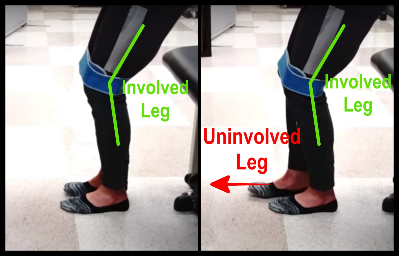 standing exercise for knee hyperextension