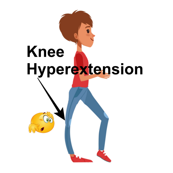 vector image of knee hyperextension