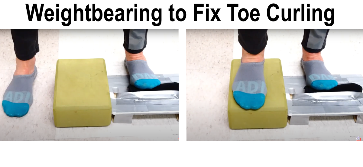 weightbearing exercise to reduce toe curling