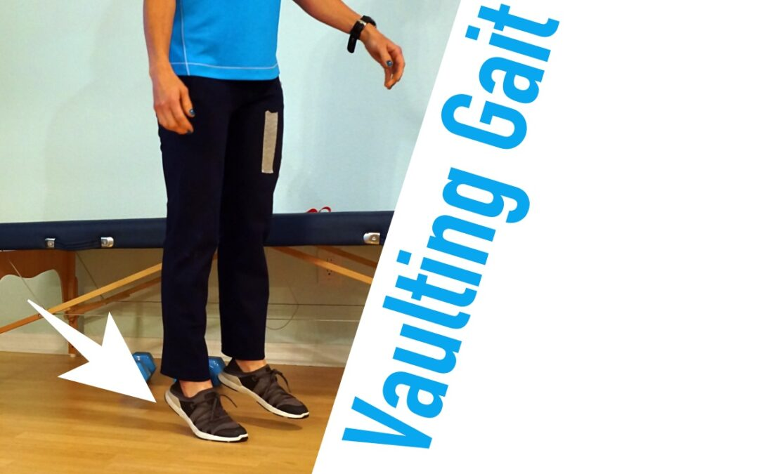 Vaulting Gait After a Stroke