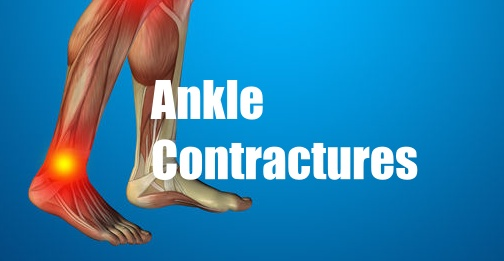 Ankle Contractures: Best and worst treatments