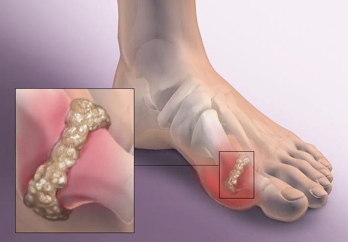 Gota: síntomas, causas y tratamiento adecuado