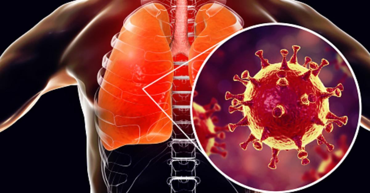 9 Alimentos para regenerar los pulmones
