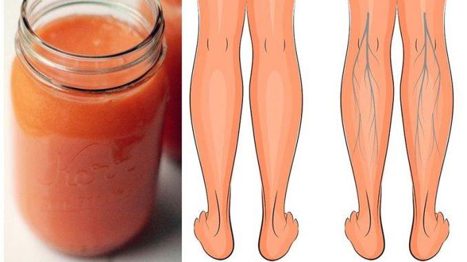 ¿Mala circulación y pies hinchados? Este batido ayuda ha lidiar con ello
