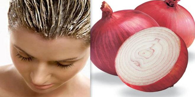 ¿Cómo hacer Shampoo de cebolla? Evita mas caída de tu pelo..