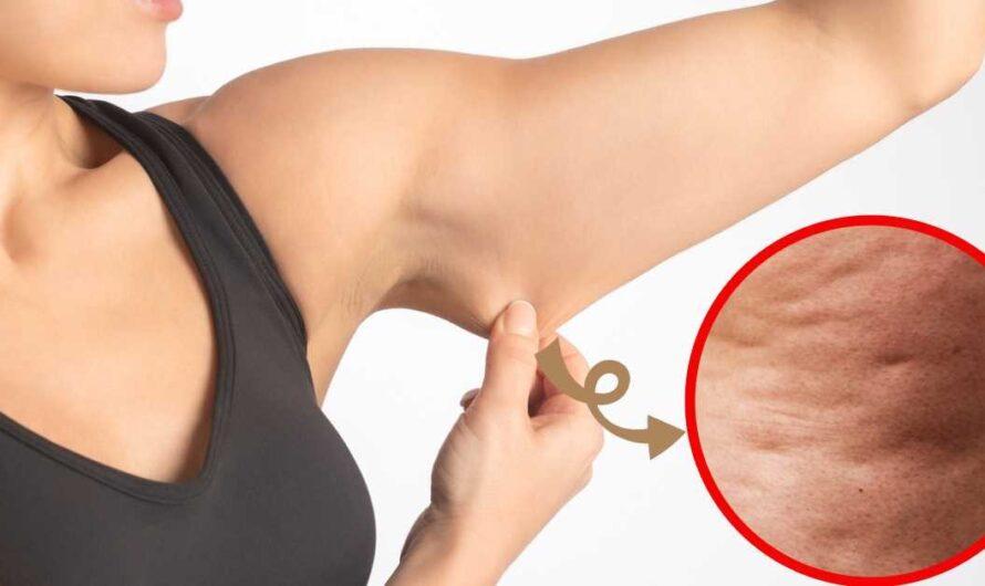 Ejercicios para eliminar la flacidez de los brazos